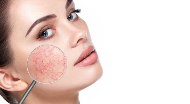 Couperose: causes, remedies and tips to cover redness on the face