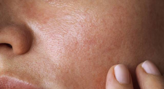 Spots on the face: 6 natural methods to eliminate them