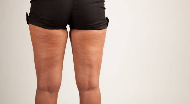 Start fighting cellulite in winter: the treatments to do now
