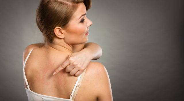 Body acne: 7 remedies for pimples on the chest and back