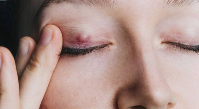 Chalazion, what are the symptoms of the cyst on the eyelid and how to get rid of it