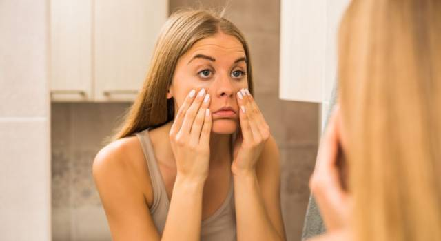 How to eliminate dark circles: natural remedies and what to pay attention to