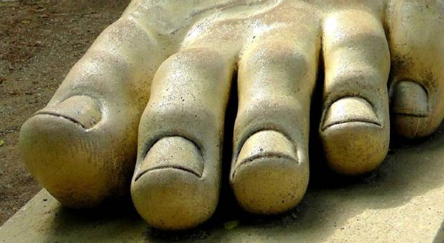 Hallux valgus: prevention, diagnosis of causes and treatment