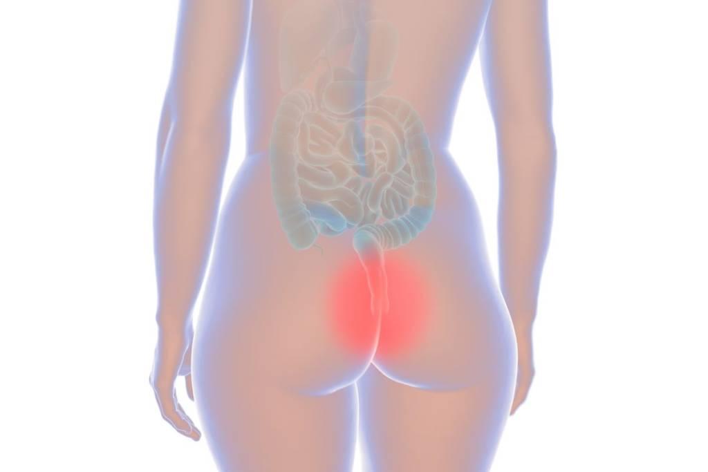 Hemorrhoid woman illustration