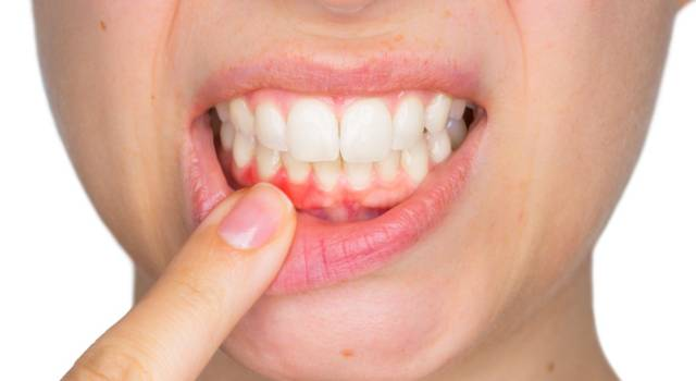 Gingivitis: how to treat teeth and gums in a natural way