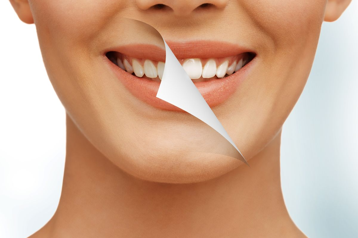 Smile yellow and white teeth