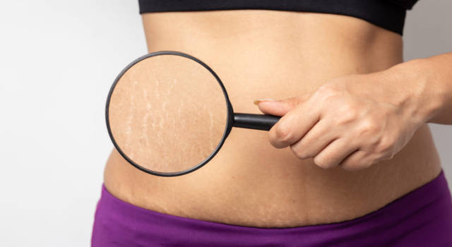 The appearance of stretch marks in pregnancy and the methods to prevent and eliminate them