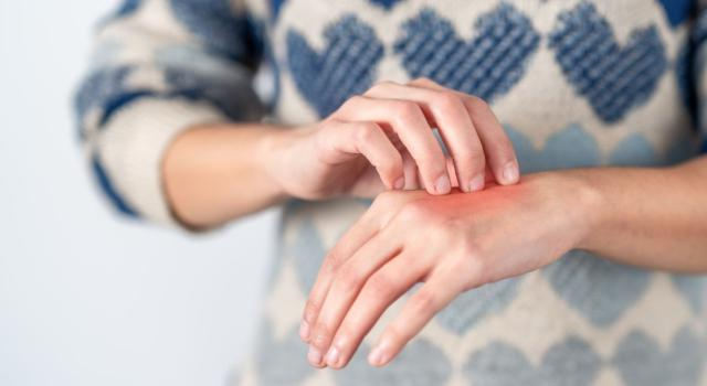 Natural remedies for itchy hands