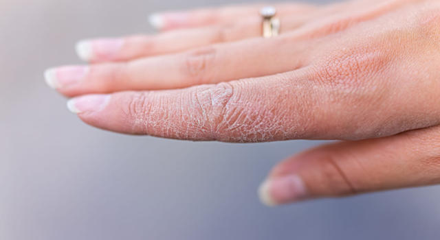 Hand dermatitis: what it is, what causes it and how to treat it