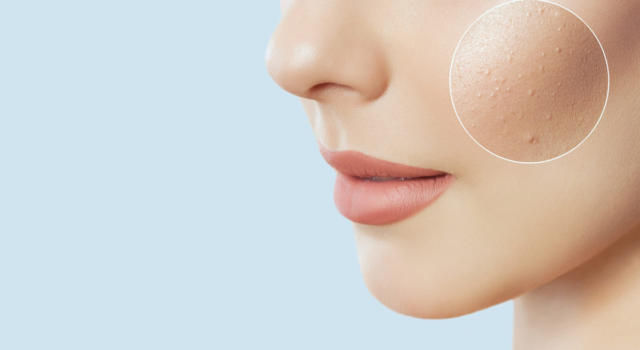 Dermatitis on the face: what it is and how it is treated