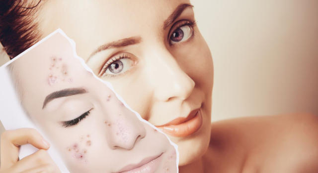Acne peeling: what it's for and how it works