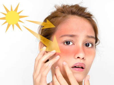 Sunburns: what they are and how to recognize them in time
