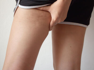 Edematous cellulite: find out what it is and how to treat it