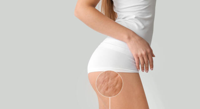 How to prevent cellulite: the rules to follow