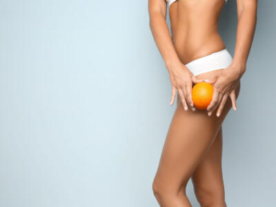 Anti cellulite treatments: find out which are the most important