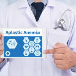 Aplastic anemia: what it is and what are the symptoms to recognize