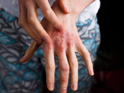 Neurodermatitis: what it is, what are the causes and how to treat it