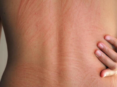 Stress urticaria: what it is, how to recognize it and what are the remedies