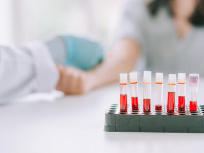 Low hematocrit: let's find out what it is and what it depends on